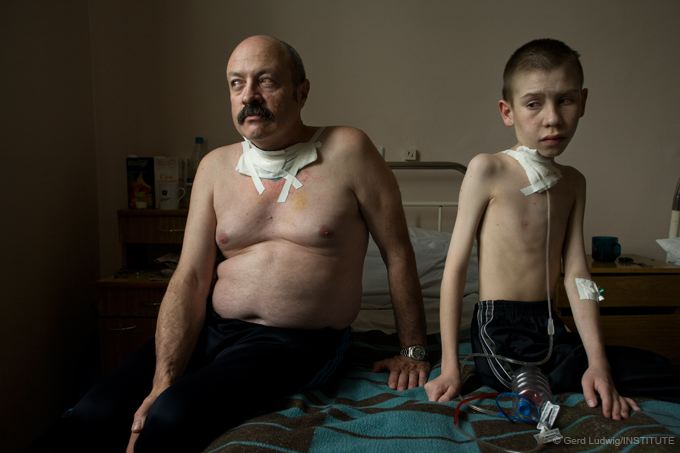 Chernobyl liquidator and young boy after thyroid cancer surgery